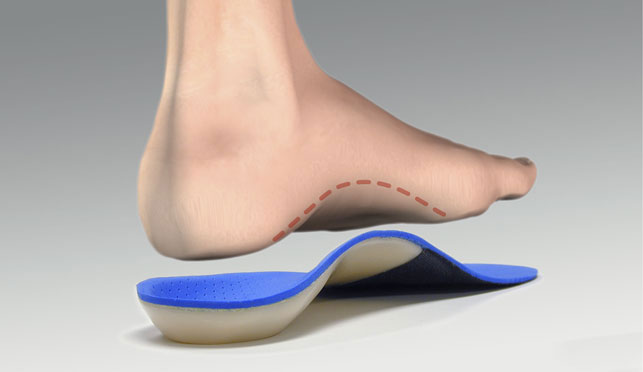 Арка свода стопы при плоскостопии