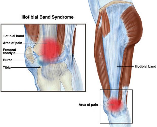 ITB-syndrome синдром илиоб