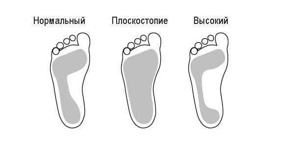 определение свода стопы по отпечатку