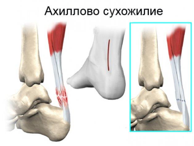 картинка ахиллового сухожилия