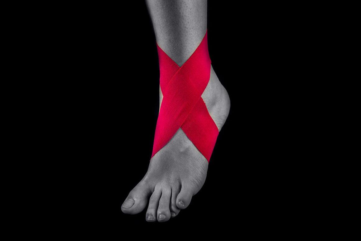 Стабилизация голеностопного сустава «восьмерка»